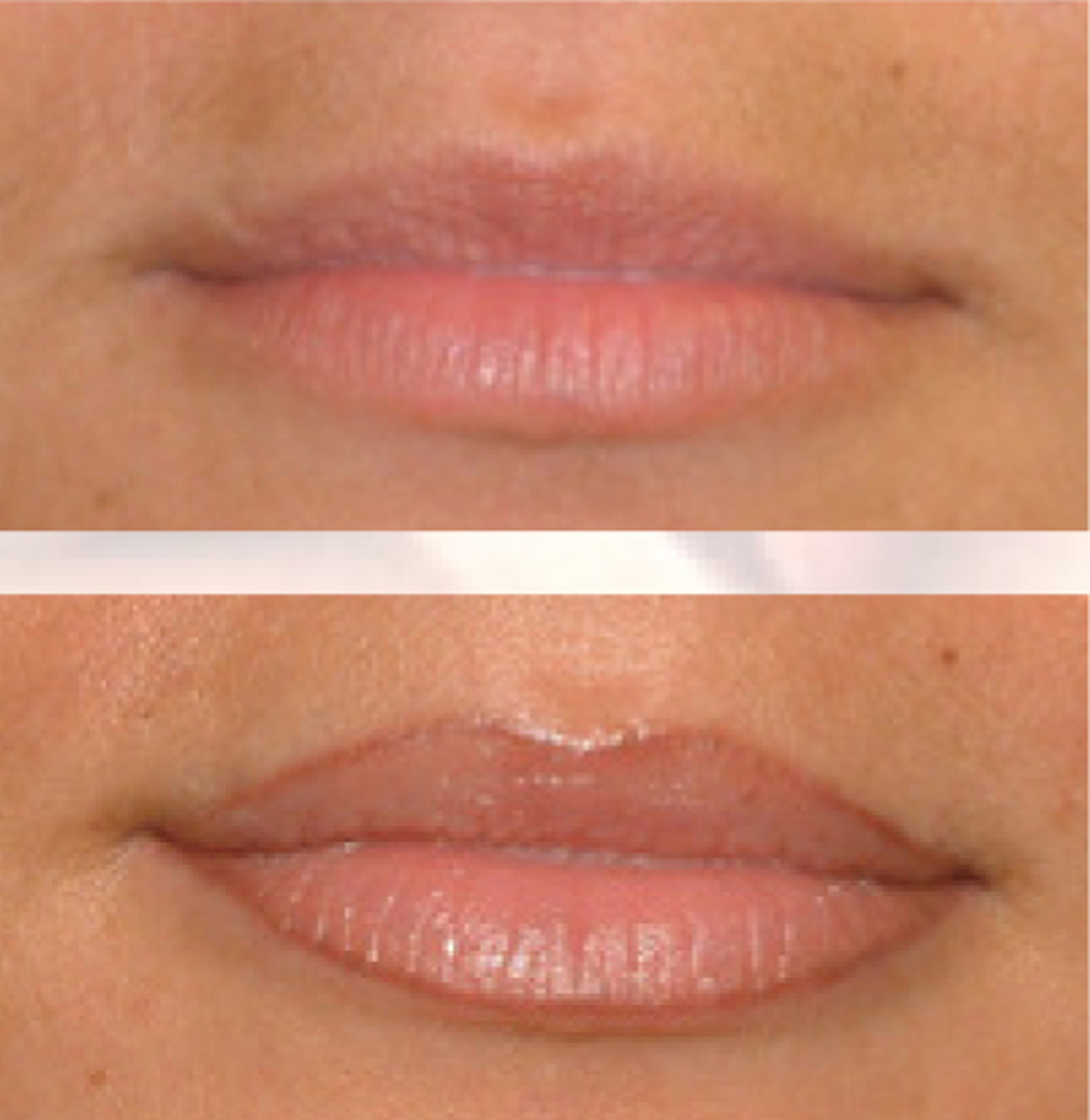 Ecuri_full lips before after a